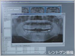 デジタルパノラマレントゲン画像